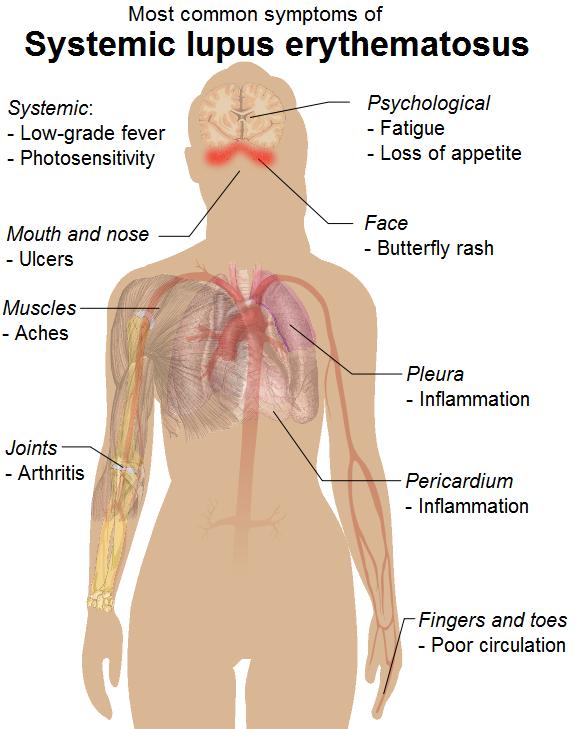 Symptoms_of_SLE