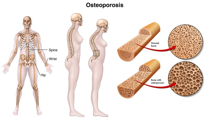 What-causes-osteoporosis
