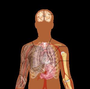 pneumonia2