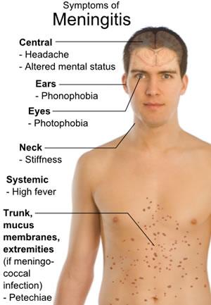 Bacterial Meningitis3