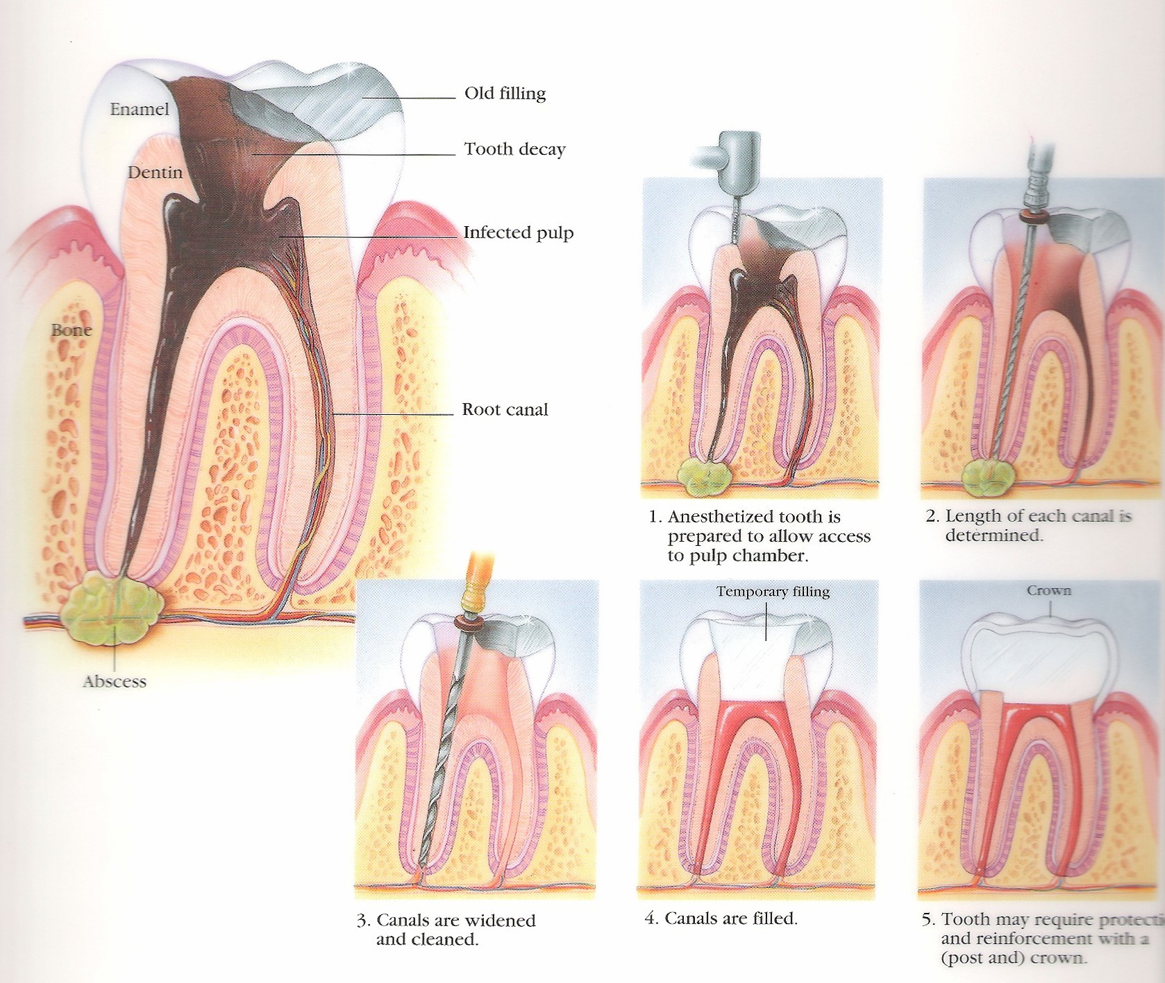 What Is A Root Canal Health Life Media
