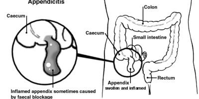 Appendicite in un'infiammazione dell'appendice. L'appendice, situata nell'addome, è un tubo di tessuto lungo 3 1/2 pollice che si estende dall'intestino crasso.