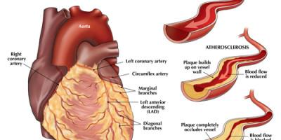 L'aterosclerosi è quando le arterie si induriscono e si restringono. Questo è così dannoso perché blocca lentamente le arterie, mettendo a rischio il flusso sanguigno.
