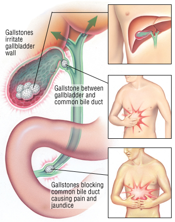 gallstones pain
