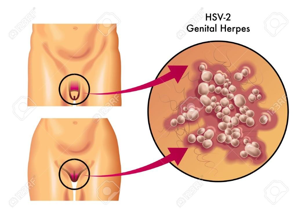 genital herpes2