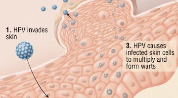 La trasmissione HPV può causare arti genitali o alterazioni anomale delle cellule localizzate nella cervice e in altre regioni genitali, che possono portare al cancro.