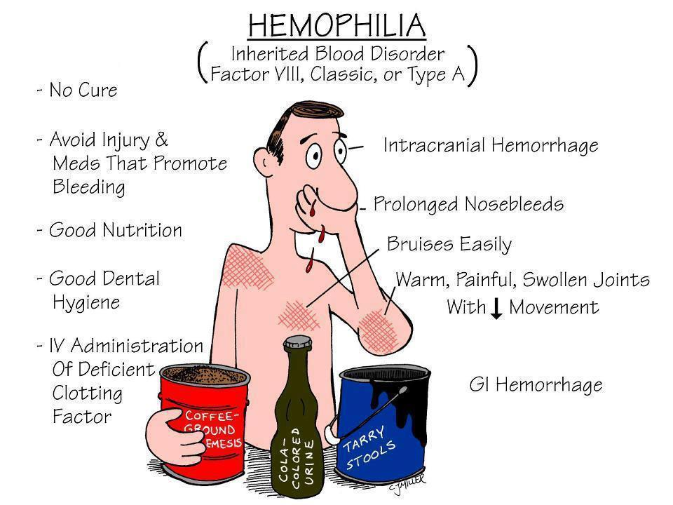 hemophilia symptoms