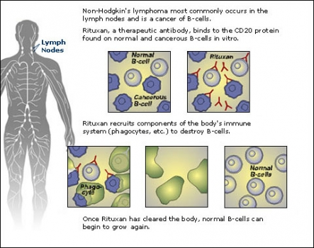 non-hodgkins-lymphoma-cancer.preview