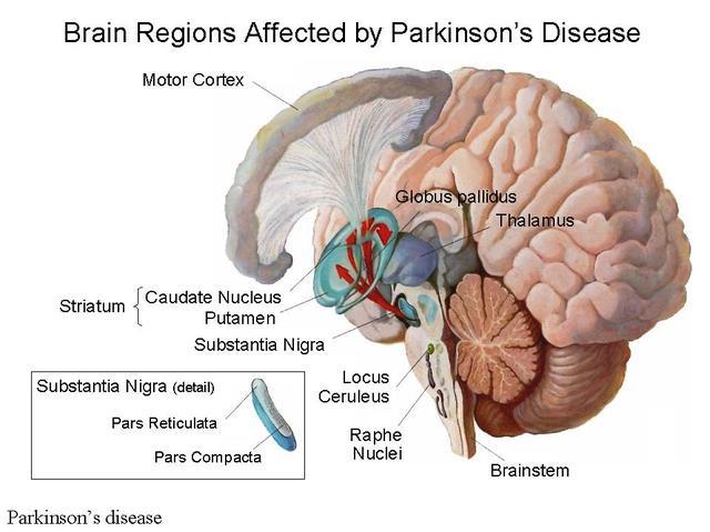 parkinson's study