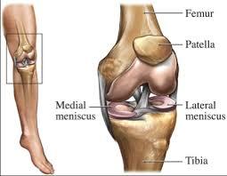 Arthroplasty 1
