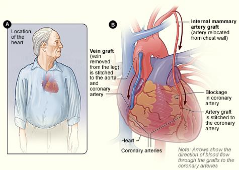 Chirurgie bypass coronarian1