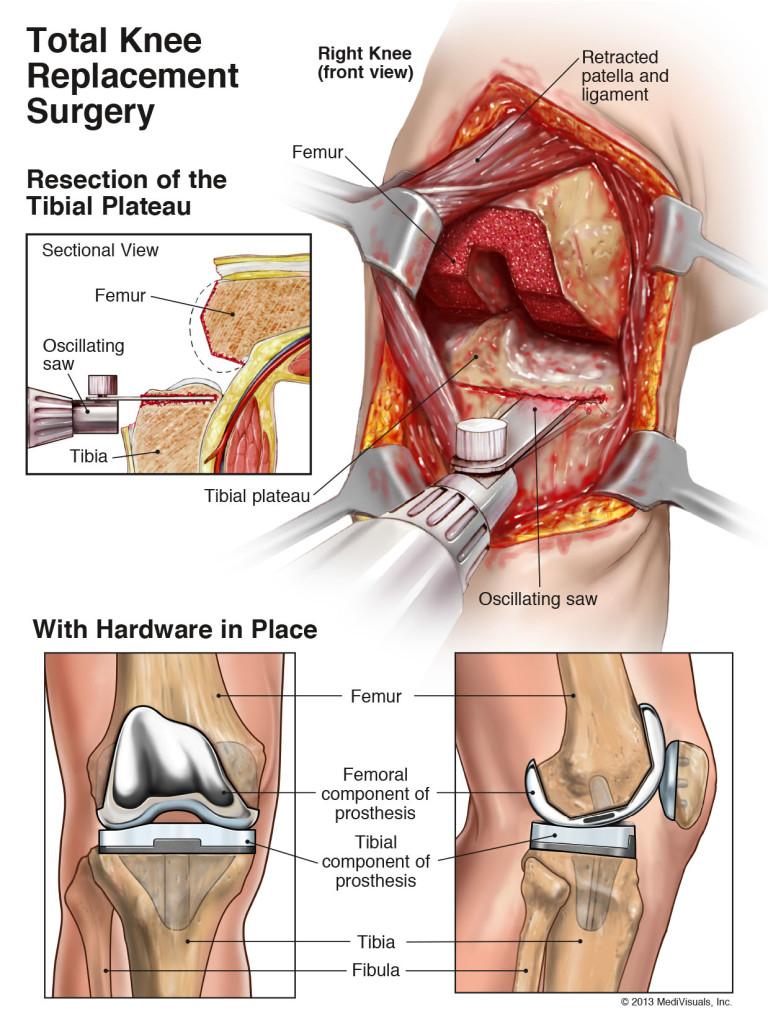Total genunchi-înlocuire-chirurgie-3