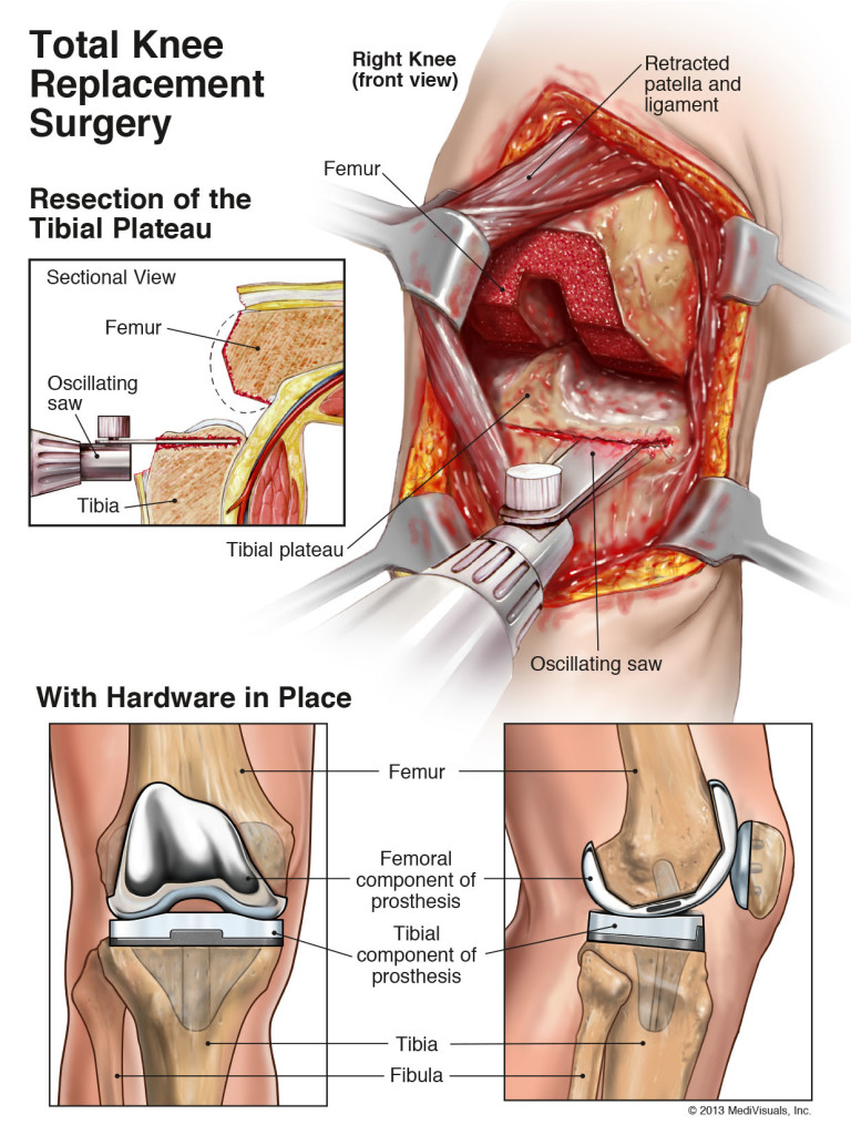 Total-knæ-erstatning-kirurgi-3