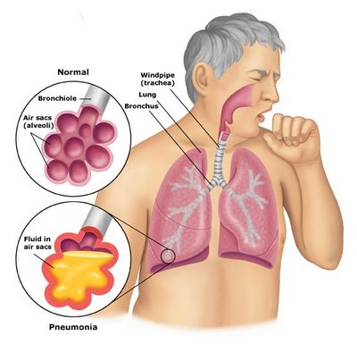 Walking-Pneumonia-Symptoms1