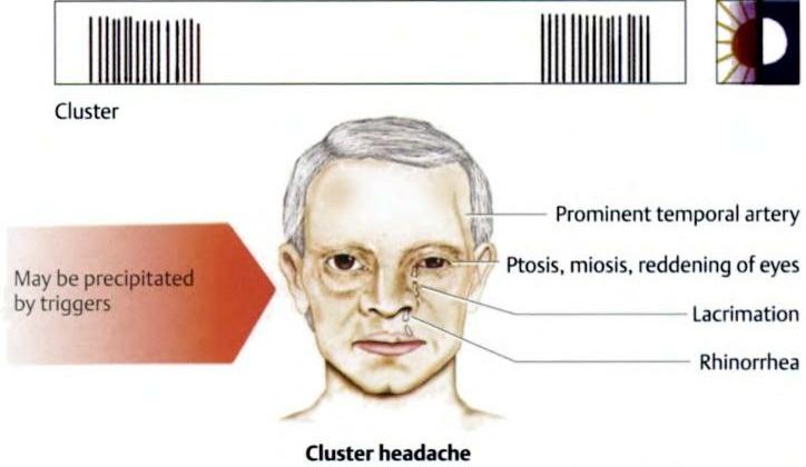 क्लस्टर सिरदर्द