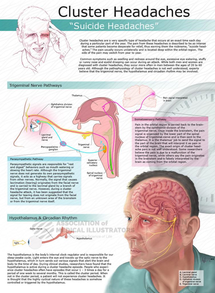 झुकाव सिरदर्द