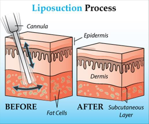 liposuction-procedure -