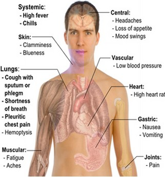 symptoms-of-walking-pneumonia