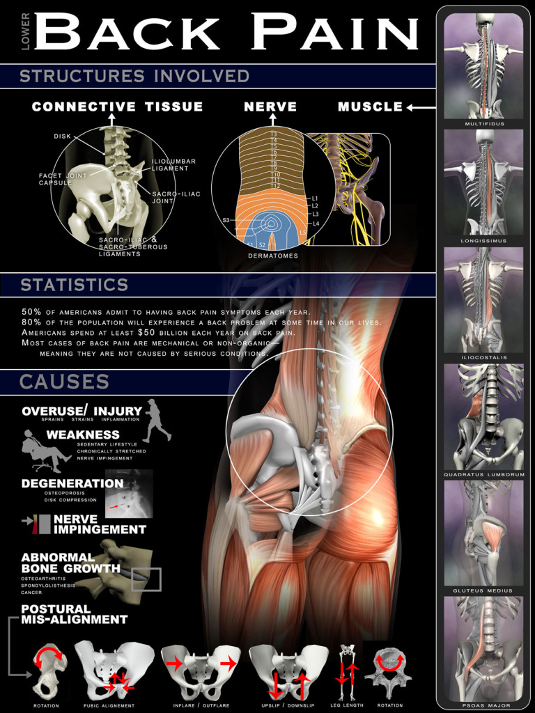 Back-pain-poster