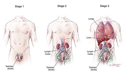 Qu'est-ce que le cancer des testicules? | Health Life Media
