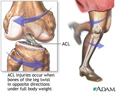 ACL_Injury1