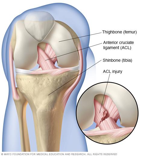 Передняя крестообразная связка (ACL)