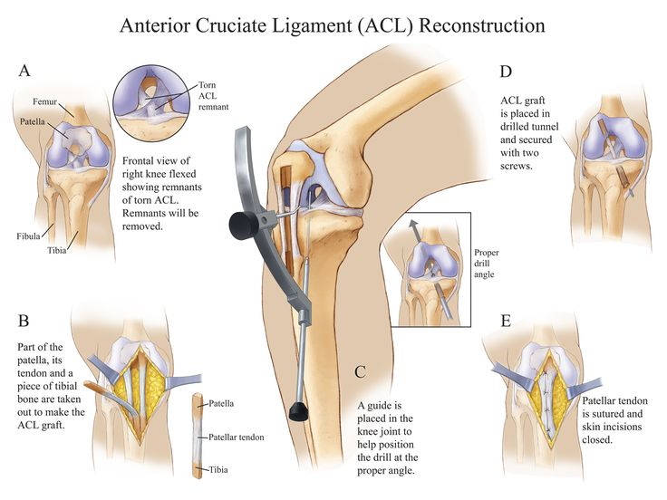 Anterior Cruciate Ligament Surgery2