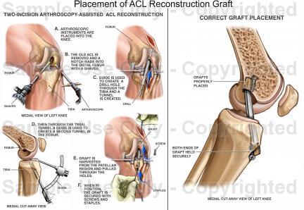 Anterior Cruciate Ligament Surgery3