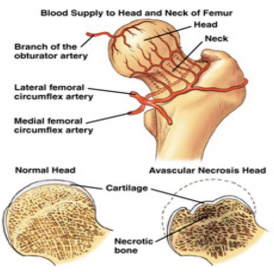 血管の壊死 - 骨の骨壊死 - 血管の壊死