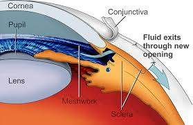 Glaukomkirurgi