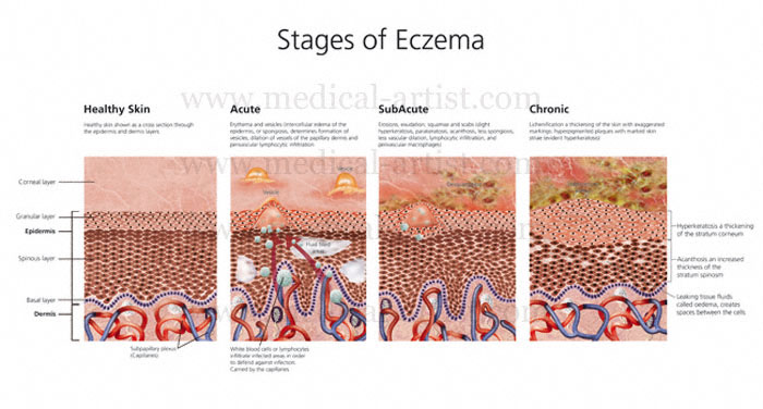 Skin-Stages-of-Eczema