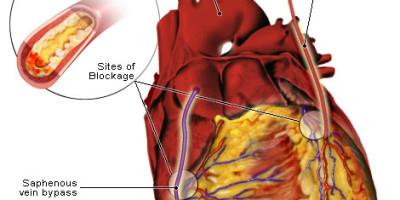 bypass-operatie, coronaire bypass-operatie, coronaire hartziekte