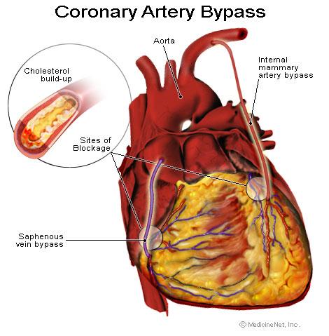 coronary_artery_bypass