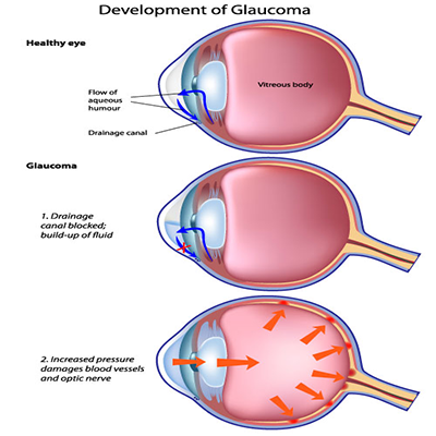 glaucoma-development-