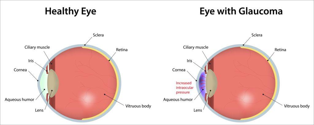 glaucoma-eye-procedures-healthlifemedia