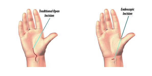 Carpal-Tunnel-Syndrome-Surgery