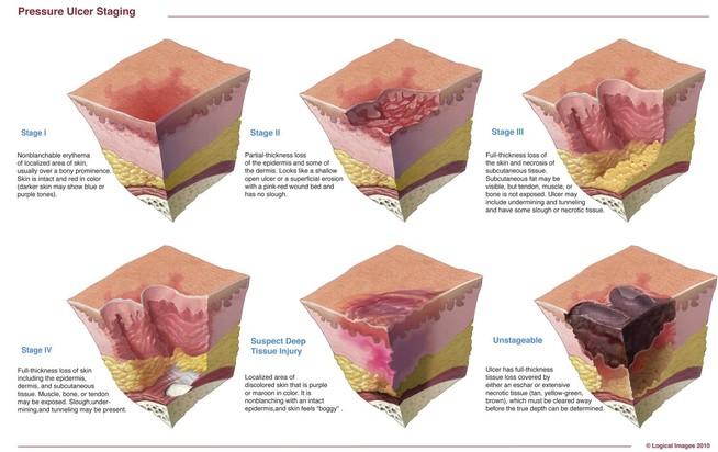 Pressure Ulcers 1