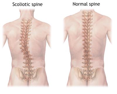 ScolioticSpineNormalSpine