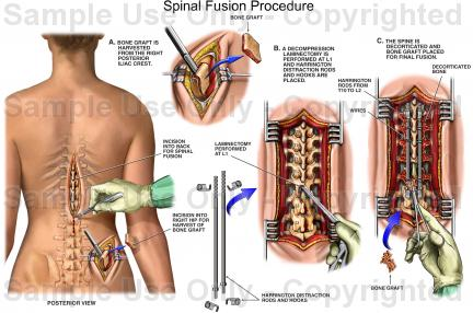 Spinal Fusion 1