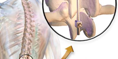 Fusione spinale è una procedura chirurgica che è raccomandata per correggere i problemi con le piccole ossa delle vertebre o della colonna vertebrale.