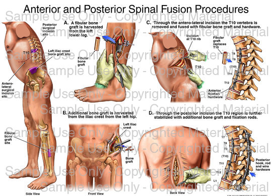 Spinal Fusion 4