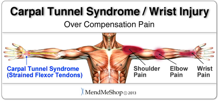 Understanding Carpal Tunnel Syndrome2