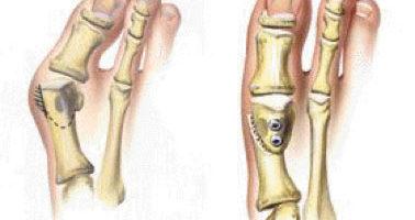 Bunions o alluce valgo è una comune deformità del piede. Ci sono idee sbagliate su queste deformità. Molte persone possono soffrire inutilmente del dolore delle borsate per anni prima di cercare un trattamento adeguato.