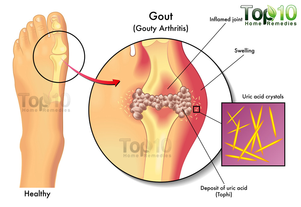 gout-diag-opt