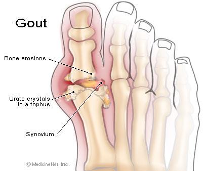 gout-diag-opt2