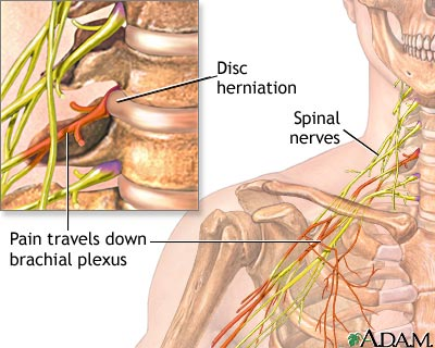 Herniated, Pinched Nerve, Slipped Disc | Health Life Media