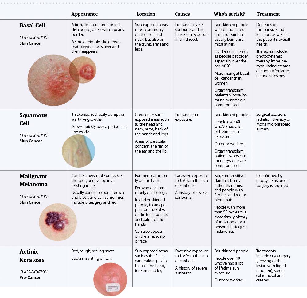 skin-neoplasm- համեմատություն 2