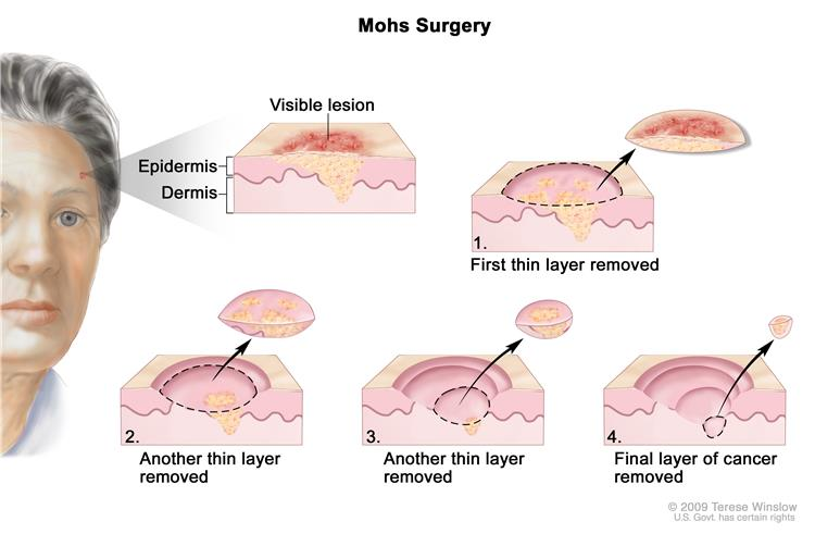skin-neoplasm-comparison3