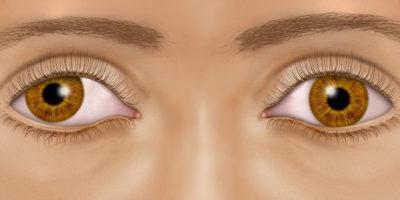 L'ambliopia o l'occhio pigro è una condizione che causa una diminuzione della vista in uno o entrambi gli occhi a causa di uno sviluppo anormale della visione durante l'infanzia o l'infanzia.