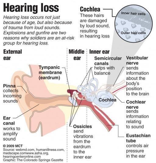 Høretab